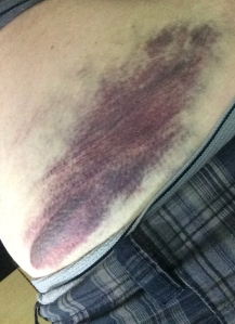 Ouch! Bruise from Rapids